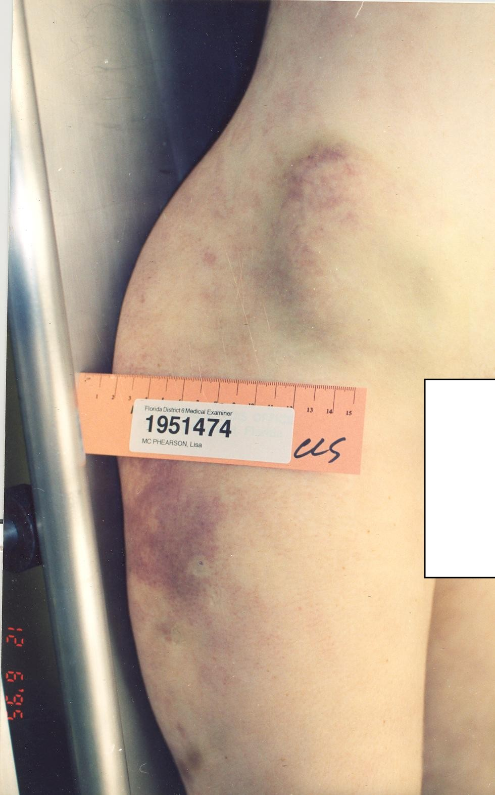 Pictures before coolsculpting after and